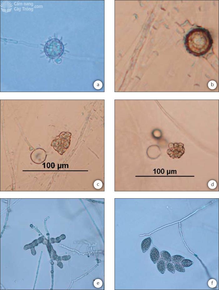 Thể trứng của Pythium spinosum với thùy thể đực bám vào